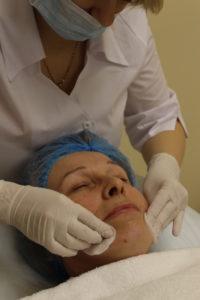 Четвёртый этап процедуры плазмолифтинга