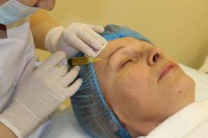 Пятый этап процедуры плазмолифтинга